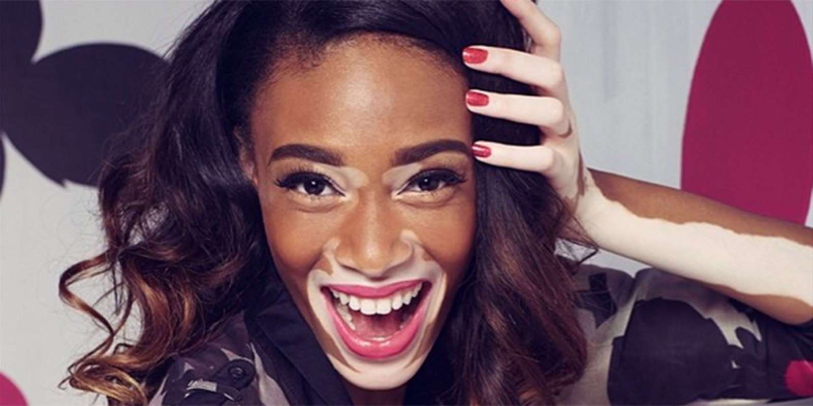 america 39 s next top model contestant and 39 vitiligo spokesmodel 39 winnie harlow interview. Black Bedroom Furniture Sets. Home Design Ideas