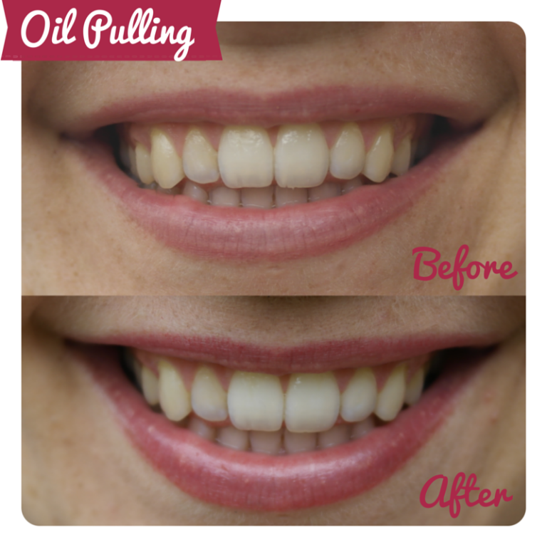 Coconut Oil Before And After Teeth