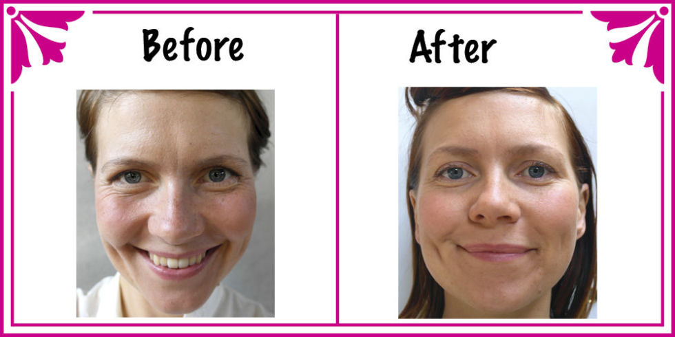 Drinking Water Skin Benefits Before And After