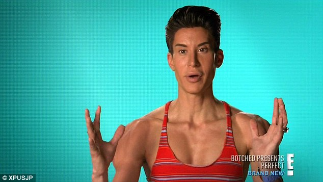 Man ken doll plastic surgery what result?