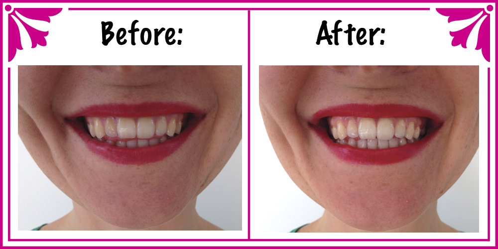 How To Make Natural Teeth Whitening Treatment
