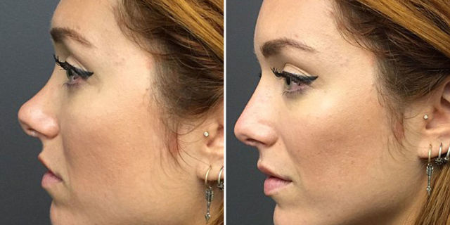 18 Facts About Lip Injections - What You Should Know About Lip ...